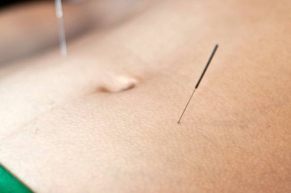 Using acupuncture to attain weight loss became popular in 2003 when CNN reported success stories from weight loss clinics in China. (wikimedia)