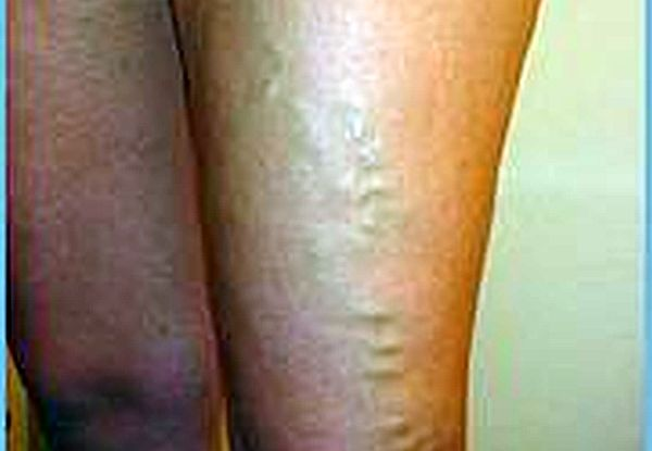 Spider veins are like varicose veins but they are much smaller. (wikimedia)
